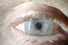 Больному выполнена сквозная субтотальная кератопластика. Трансплантат прозрачный, виден обвивной непрерывный шов. Острота зрения с коррекцией 0.8.