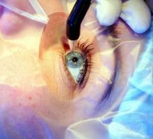 Интракамеральная пересадка эндотелия